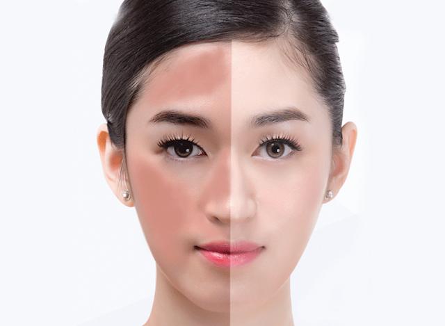 Cuma dengan Garam, Wajah Anda Bersih dan Putih Merona Tanpa Jerawat