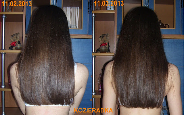 sposób na wypadające włosy forum