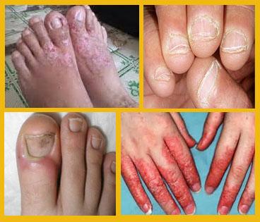 Bagaimana Untuk Menghilangkan Gatal Seperti Eksim Di jari Kaki Dan Tangan
