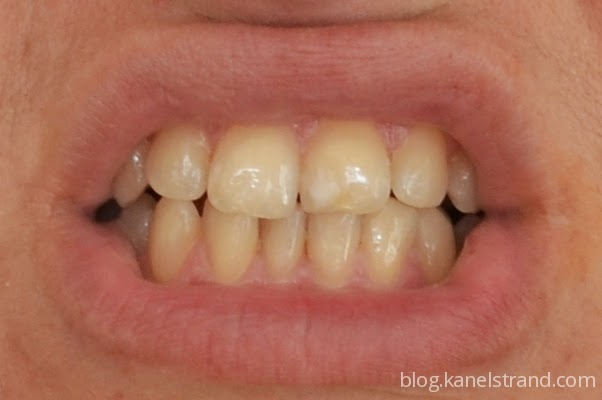 Tumeric Teeth Whitening-Recipe,Toothpaste for Teeth Stains ... |Turmeric Teeth Before And After