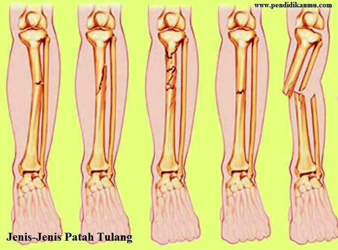 Jenis Patah Tulang