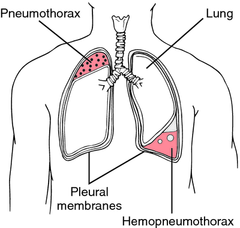 Hemopneumothorax Definition, Symptms, Causes, Treatment