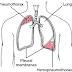 Hemopneumothorax Definition, Symptms, Causes, Treatment