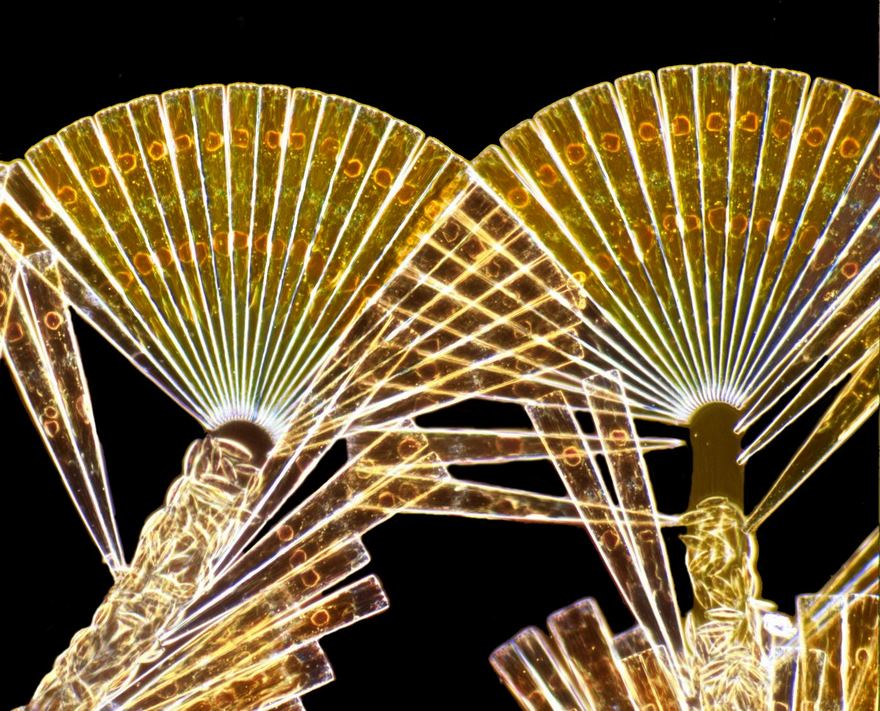 2016 Nikon Macro Photo Contest Winners Show The World Like You've Never Seen Before - Licmophora Flabellata Diatoms