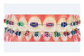 cara penjagaan memakai braces