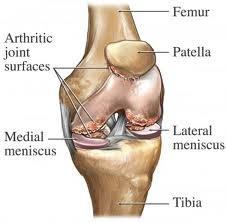 Penyebab nyeri di belakang lutut