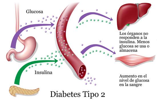 diabetes tipo 2 en el embarazo