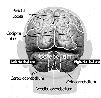 Head Injury Foreign Accent Syndrome