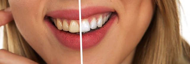 Healthy Gums * Three Techniques To Balanced White Gum line