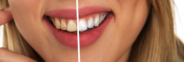 Healthy Gums * Three Techniques To Balanced White Gum line