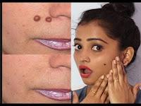 चेहरे से तिल और मस्से हटाने के 10 आसान तरीके, How To Get Rid Of Moles