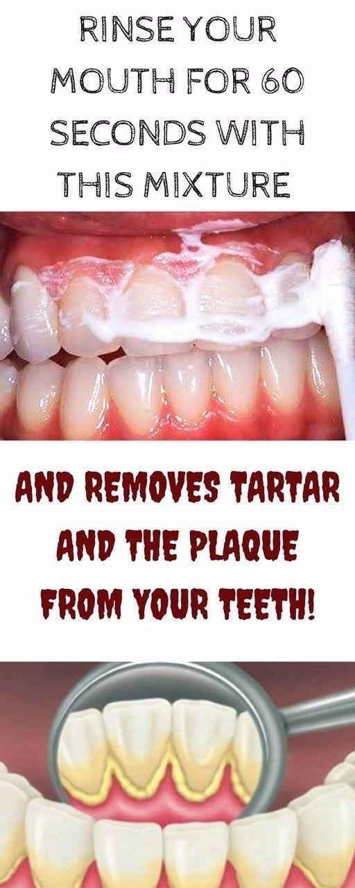 Tartar Under Gum Line