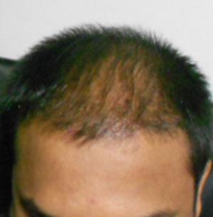 Những biểu hiện được gọi là bệnh rụng tóc
