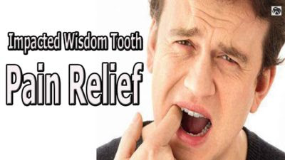 Impacted wisdom tooth pain relief