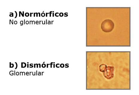 Eritrocitos dismorficos en orina