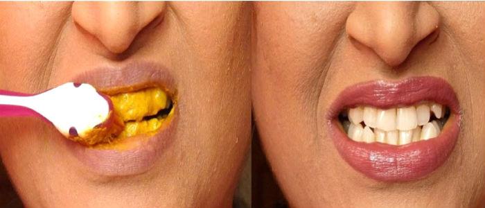 Gigi Putih Dengan Kunyit Dalam 5 Menit Jakartainside