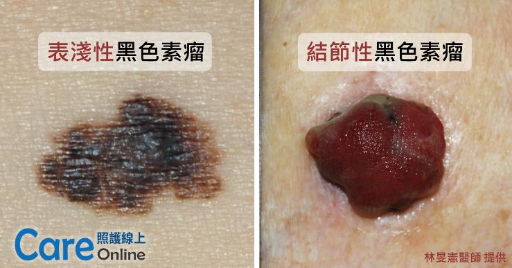 melanoma黑色素瘤相片-照護線上