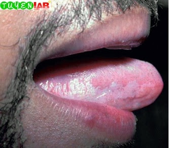 Fig. 2.13 Oral hairy leukoplakia (plaques)