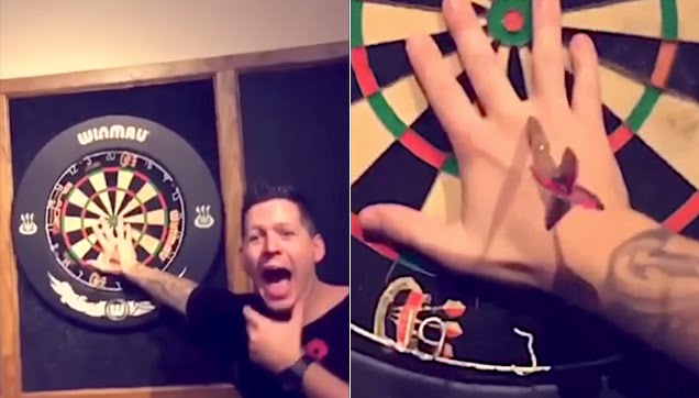Man cries in pain after failed dart exhibition