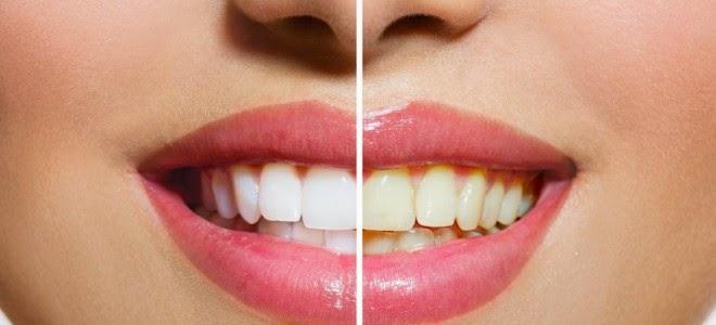 Dentes brancos em poucos minutos com dicas caseiras