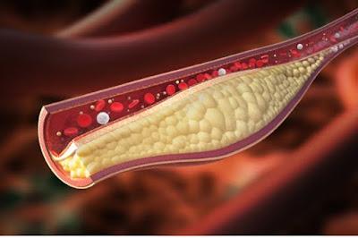 3 Cara Untuk Mengurangkan Tahap Kolesterol