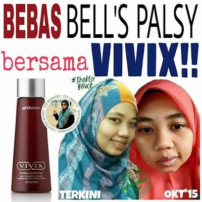 Vivix dan Bell's Palsy