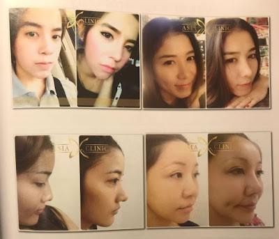 Daftar Harga Operasi Plastik Hidung Mancung di Thailand Aman dan Sehat