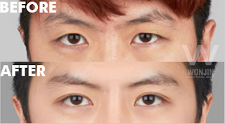 Be More Masculine With Men's Eye Plastic Surgery in Korea