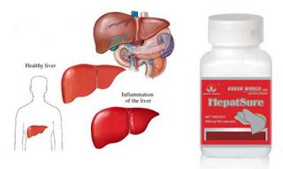 Obat Alami Hepatitis B