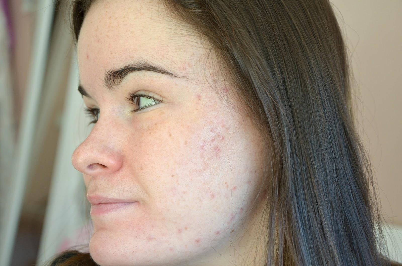 Troisième moi de traitement contre l'acné (mars 2017) côté gauche