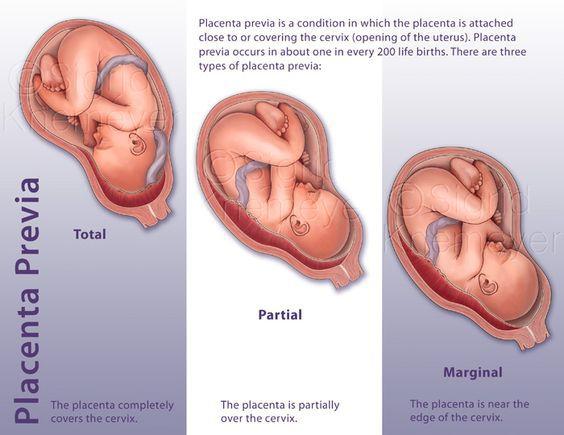 Images for marginal placenta previa - marginal placenta previa