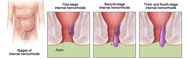 Health And Nutrition What Are Hemorrhoids-1684