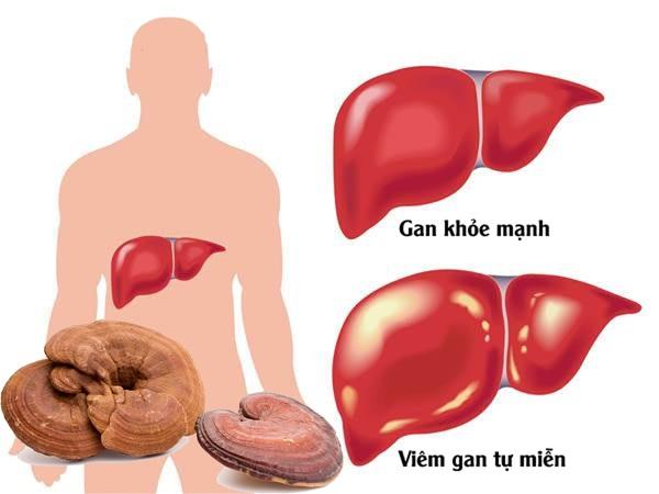 Người bị bệnh gan nên dùng nấm linh chi để gan khỏe mạnh
