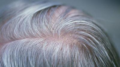 Para Ilmuwan Telah Menemukan Gen Rambut Uban