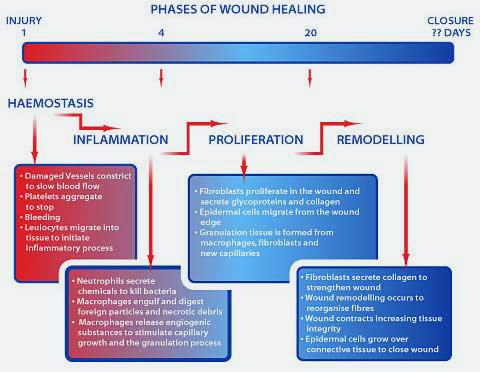 Chronic inflammation | Pathology for PAs
