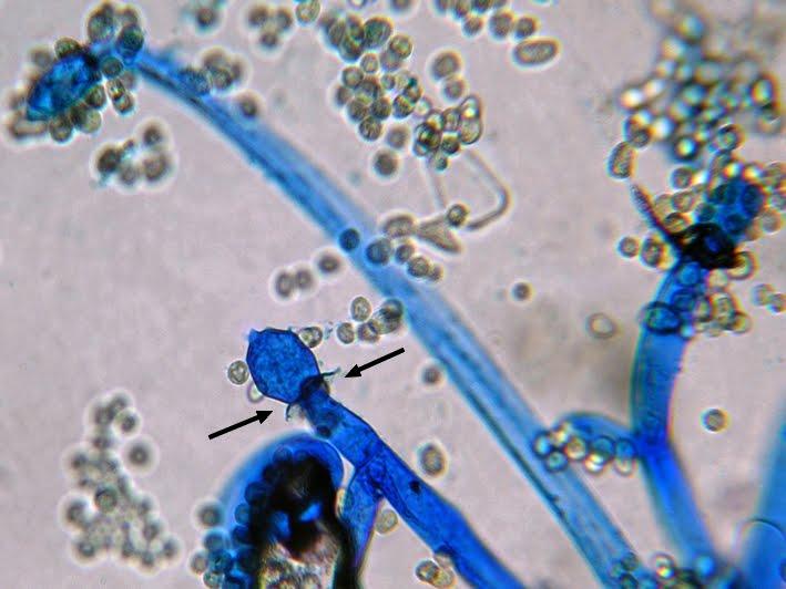 Növényvédelem   Digitális Tankönyvtár A mucor nem parazita