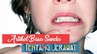 Artikel Kesehatan Kulit Tentang Masalah Jerawat Bahasa Sunda