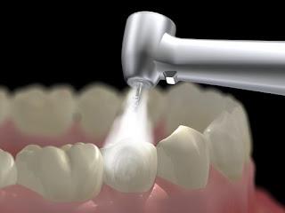 Trám răng thẩm mỹ ở đâu tốt?