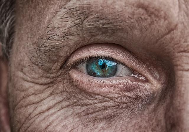 skin, skincare, antiaging, wrinkles