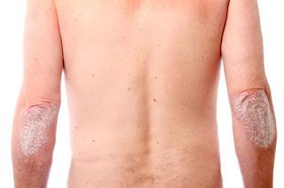 psoriasis (kulit bersisik dan gatal)