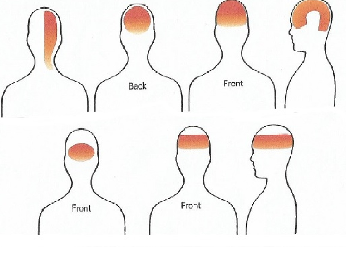 head pain back of head