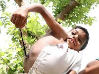 Bocah Ini Dianggap Titisan Dewa karena Punya Ekor di Punggung
