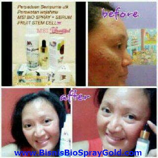 Testimoni MSI Bio Spray, Testimoni MSI Multy Spray