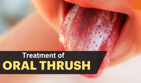 Treatment of Oral Candidiasis
