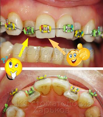 Легкое и простое определение ангуляции зуба