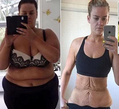 A Woman With 190 Pound Weight Loss Diet And Plastic