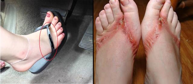 Ternyata Sandal Jepit Lebih Berbahaya Dari Pada High Heels !!