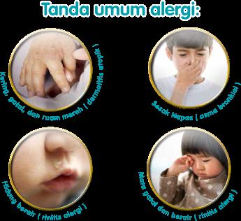 Tanda Umum Alergi
