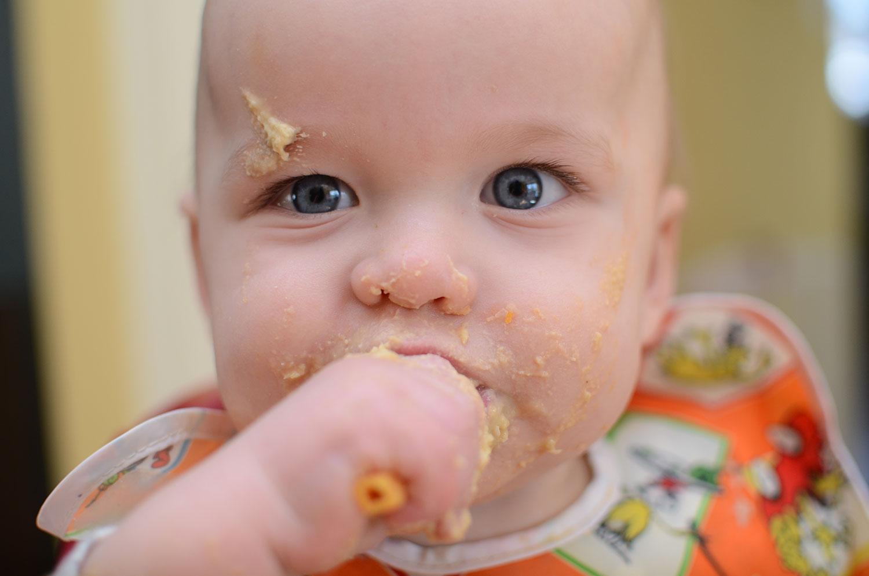 Gıda Alerjisi Nedir Neden Olur Belirtileri Nelerdir