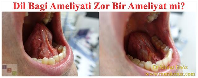 Dil bağı ameliyatı zor bir ameliyat mıdır? - Dil bağı kesilmesi zor bir işlem midir? - Dil bağı ameliyatı zor mudur? - Dil bağı ameliyatı ağrılı bir işlem midir?